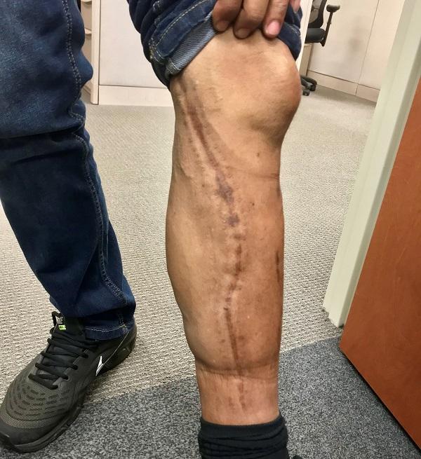Richard's Injury Photo